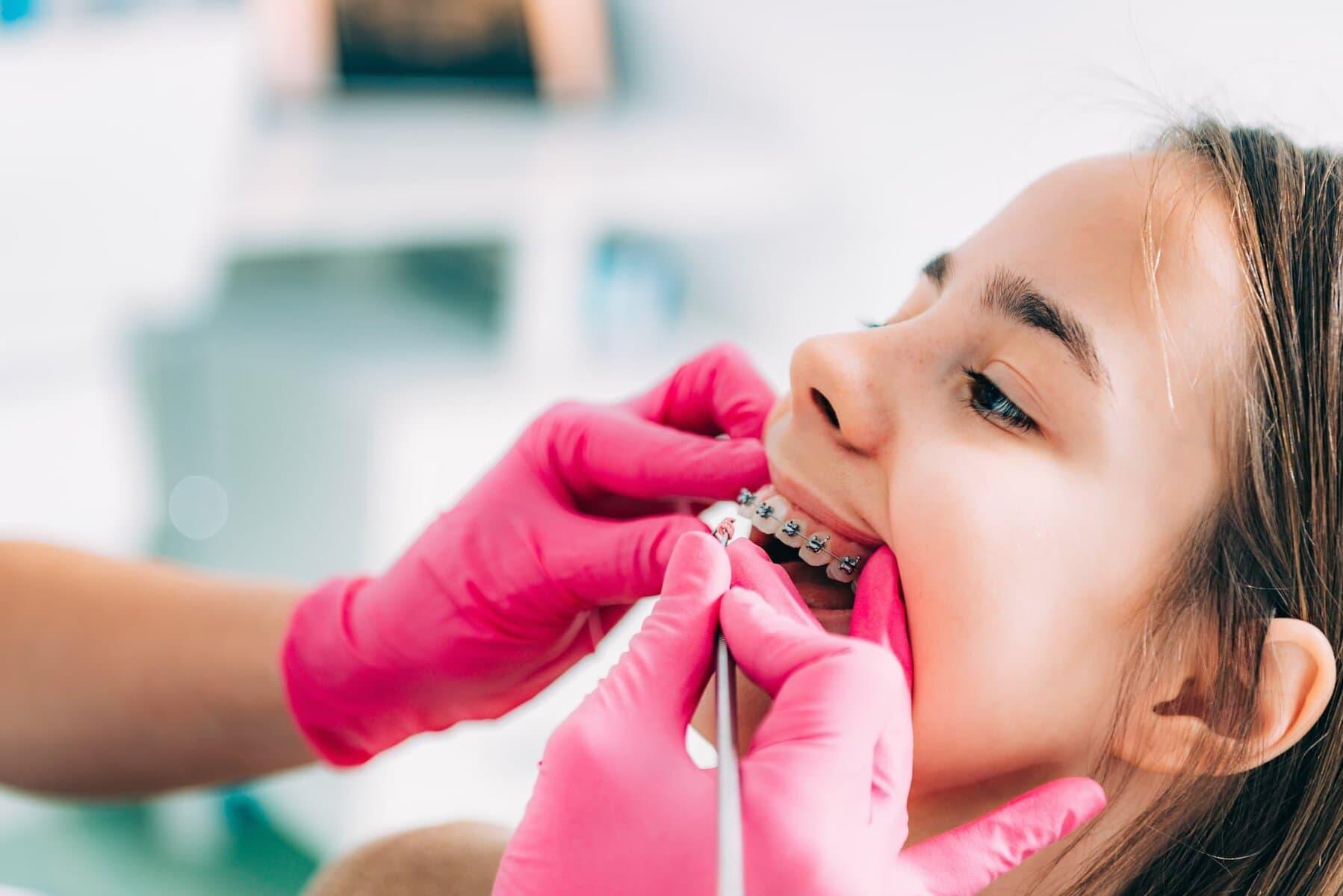 https://osemdental.com/wp-content/uploads/2021/01/Ortodontsko-lechenie-orthodontist-checking-girls-dental-braces-3VKJEWX.jpg